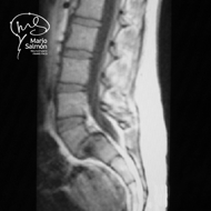 MRI Lumbar spine with displacement L5-S1