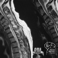MRI Cervical Spine with C5 tumor and cord compression