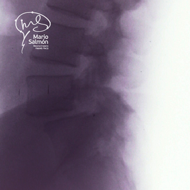 Lateral lumbar spine  dislocation L4-L5 X-ray