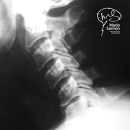 Lateral slipped disc C5-C6 X-ray