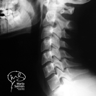 Lateral Cervical Spine in Normal Extension X-ray