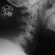 Lateral Cervical Spine dislocation C4C5 X-ray