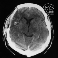 Cerebral abscess front right after surgery
