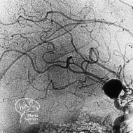 Cerebral Aneurysm (Digital subtraction angiography)